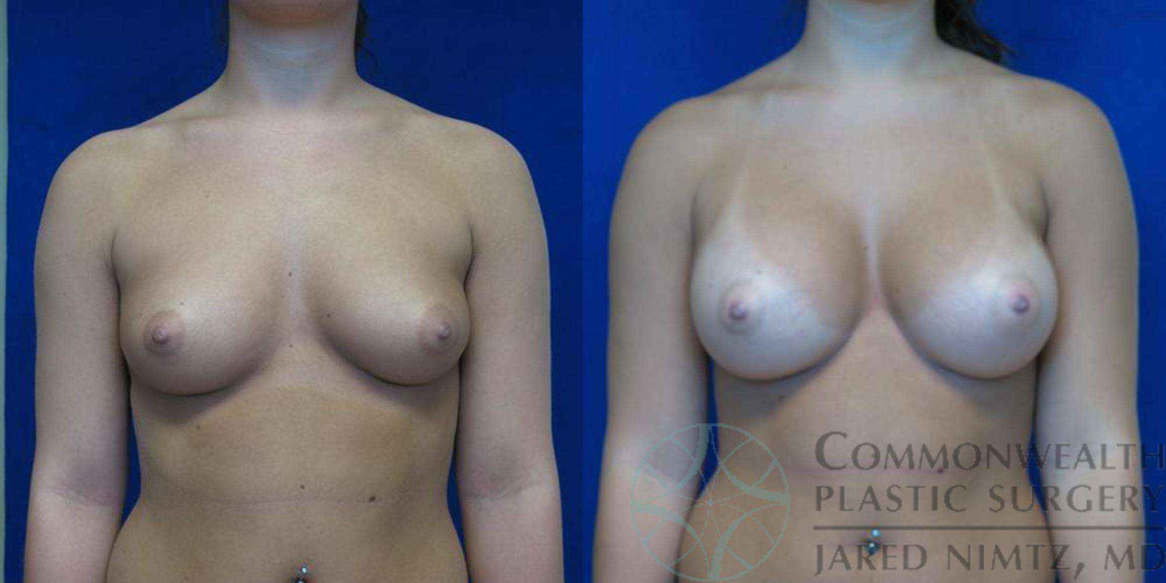 Breast Augmentation Case 48 Before & After View #1 | Lexington & London, KY | Commonwealth Plastic Surgery