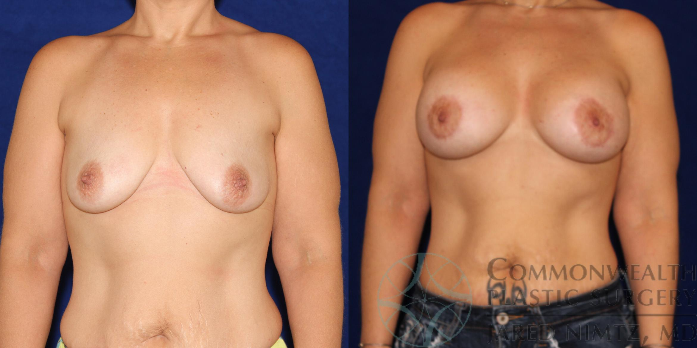 Breast Augmentation Case 77 Before & After View #1 | Lexington & London, KY | Commonwealth Plastic Surgery