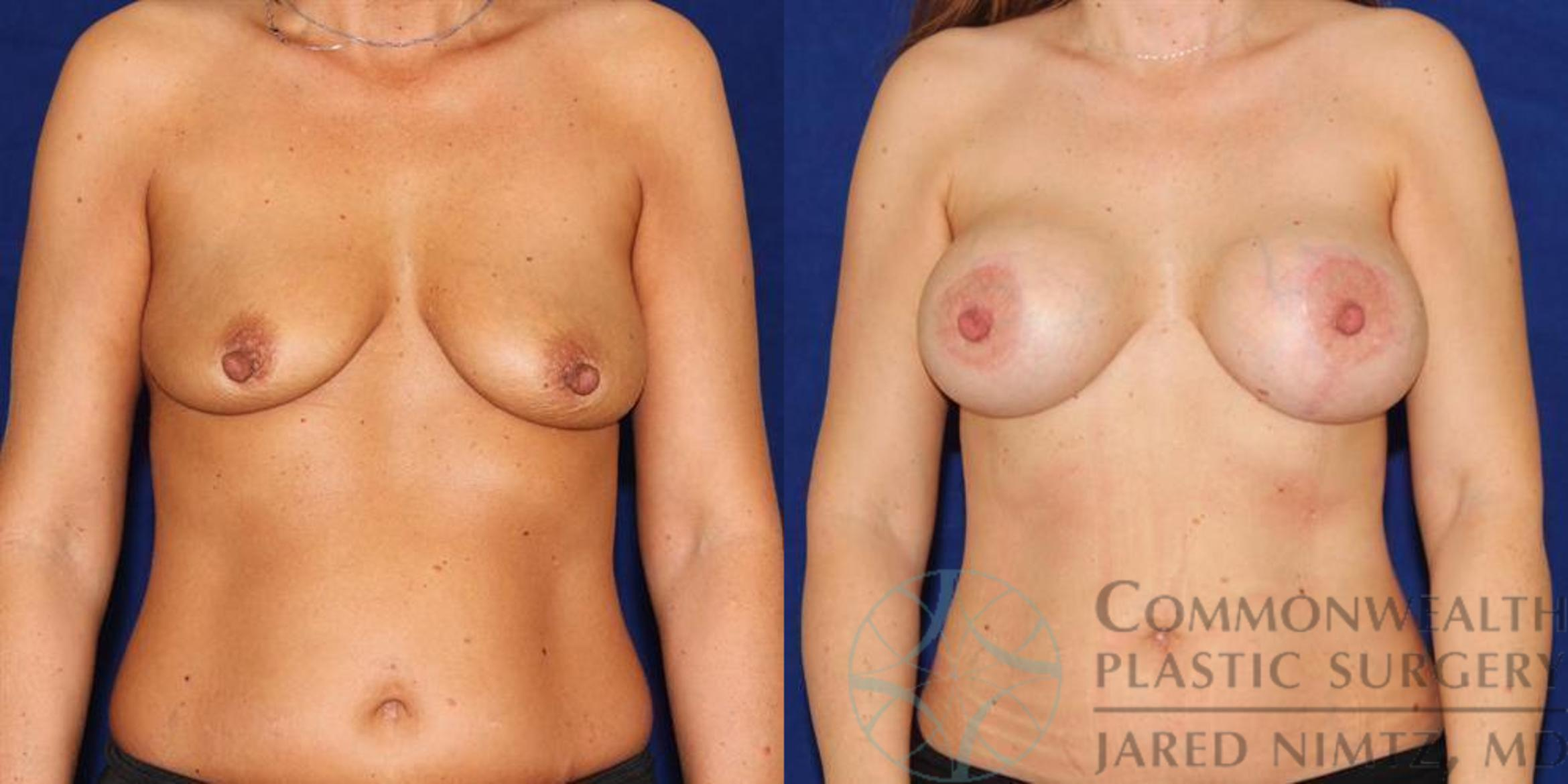 Breast Lift Case 55 Before & After View #1 | Lexington & London, KY | Commonwealth Plastic Surgery