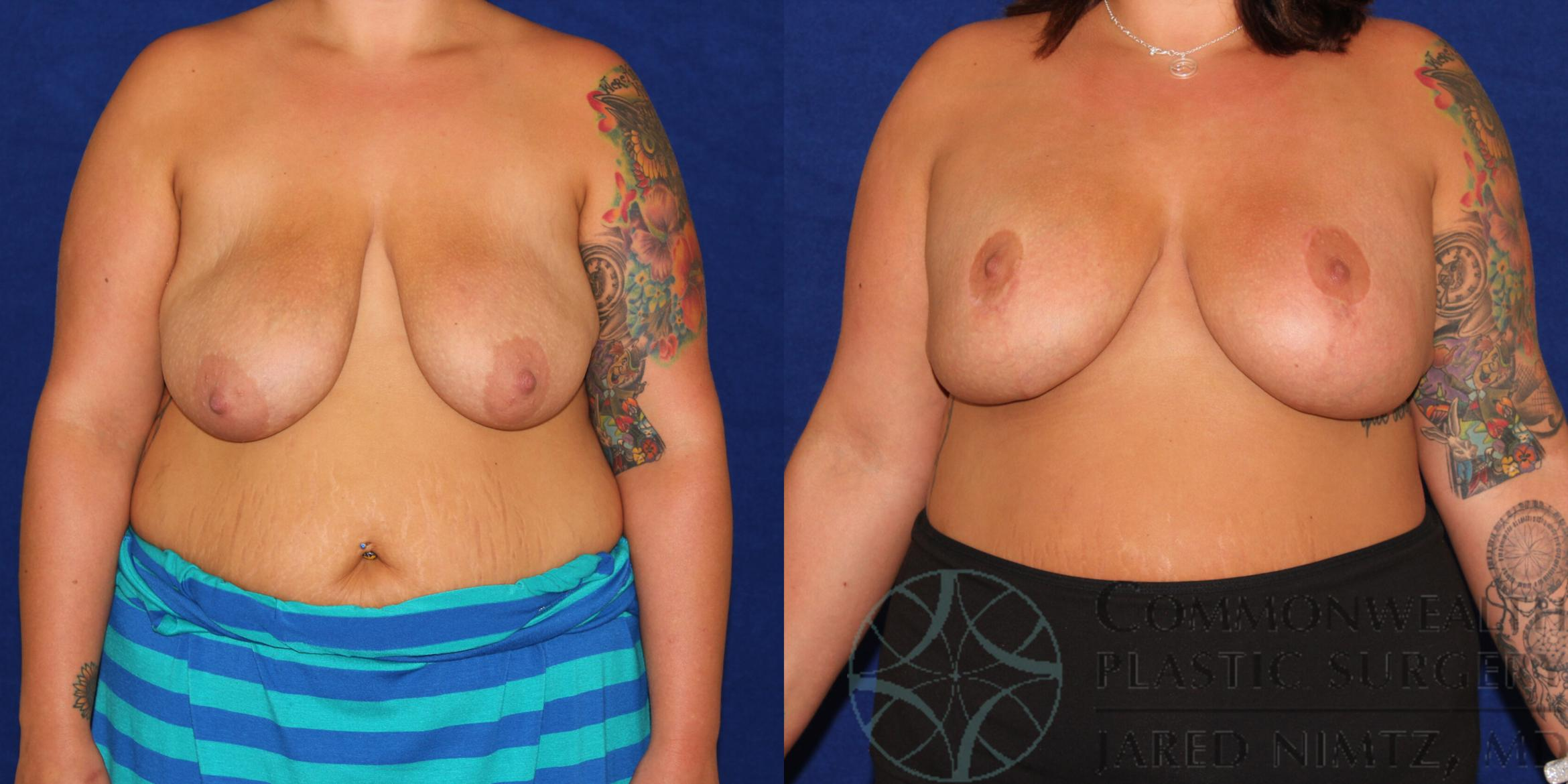 Breast Lift Case 78 Before & After View #1 | Lexington & London, KY | Commonwealth Plastic Surgery