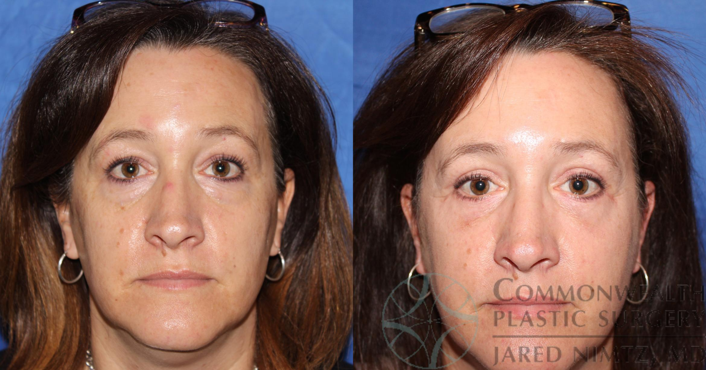 Eyelid Surgery Case 61 Before & After View #1 | Lexington & London, KY | Commonwealth Plastic Surgery