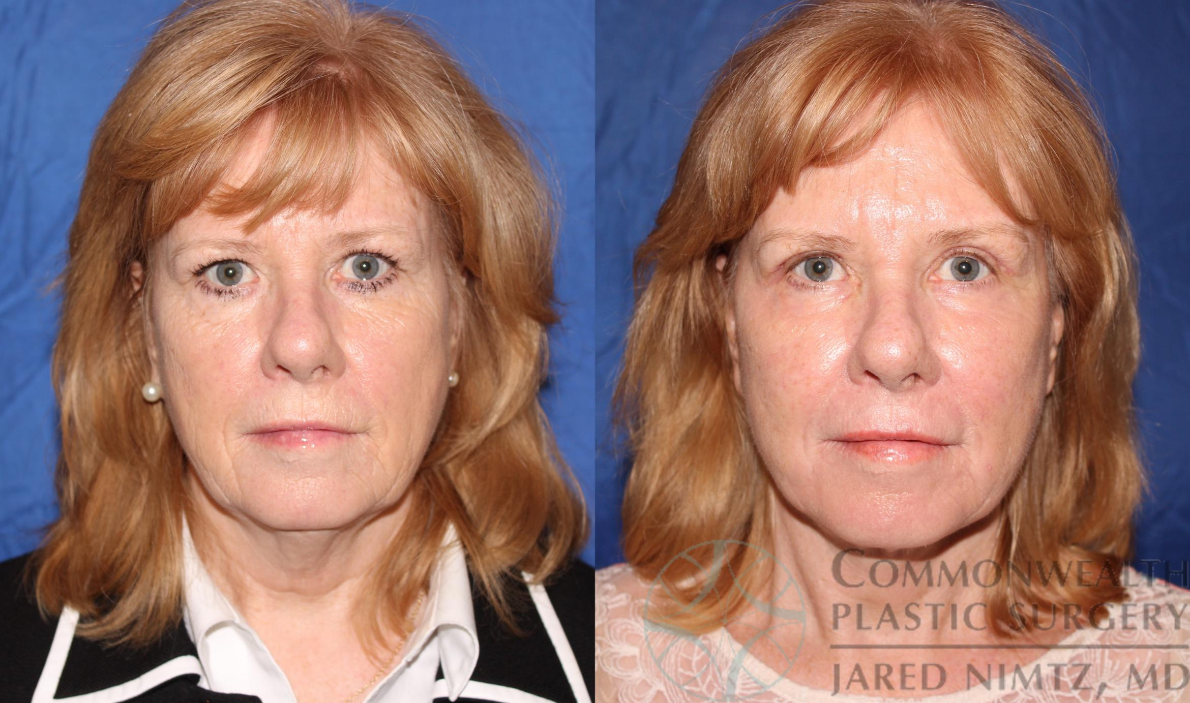 Facelift Case 62 Before & After View #1 | Lexington & London, KY | Commonwealth Plastic Surgery