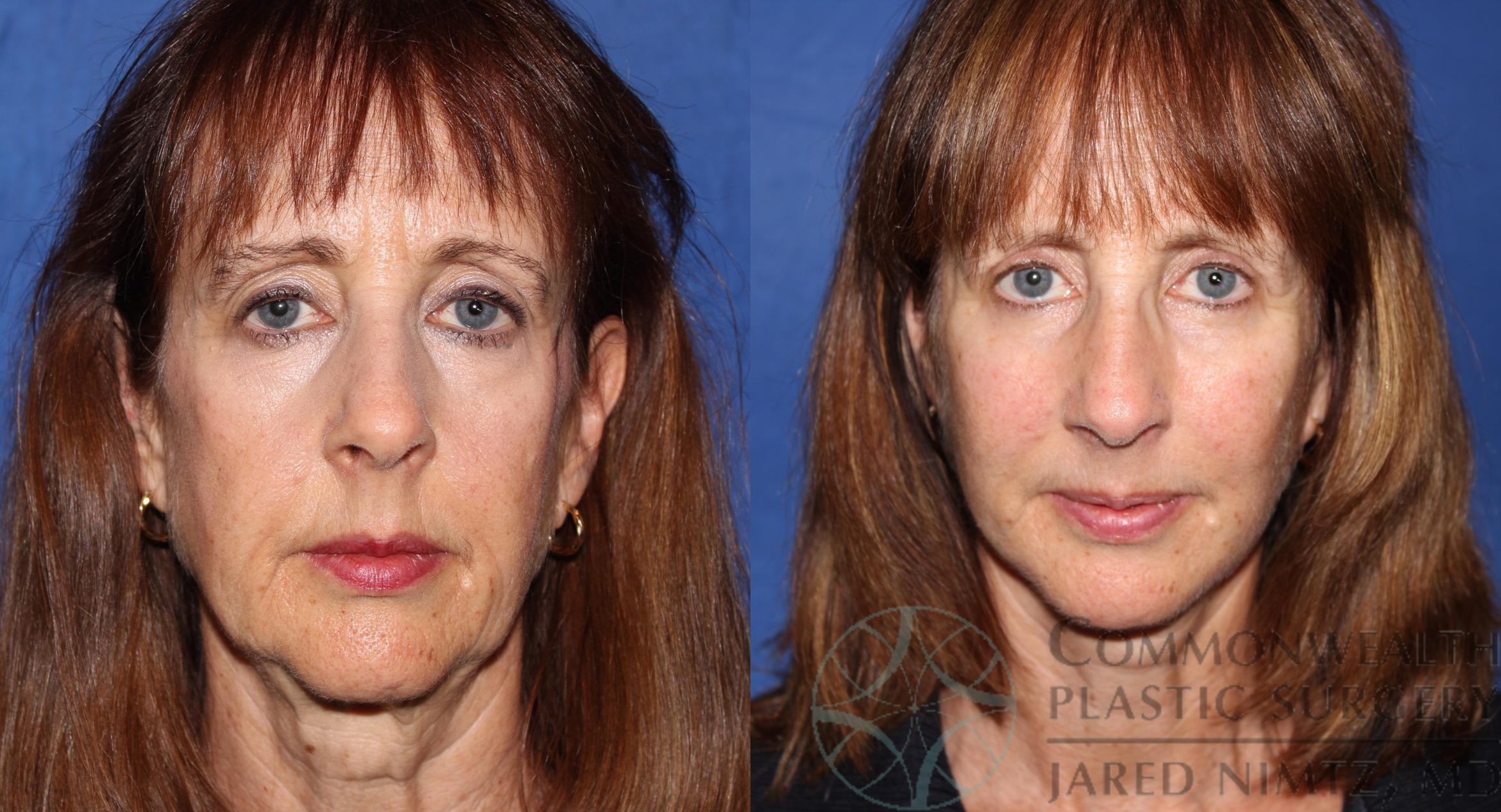 Facial Fat Grafting Case 64 Before & After View #1 | Lexington & London, KY | Commonwealth Plastic Surgery