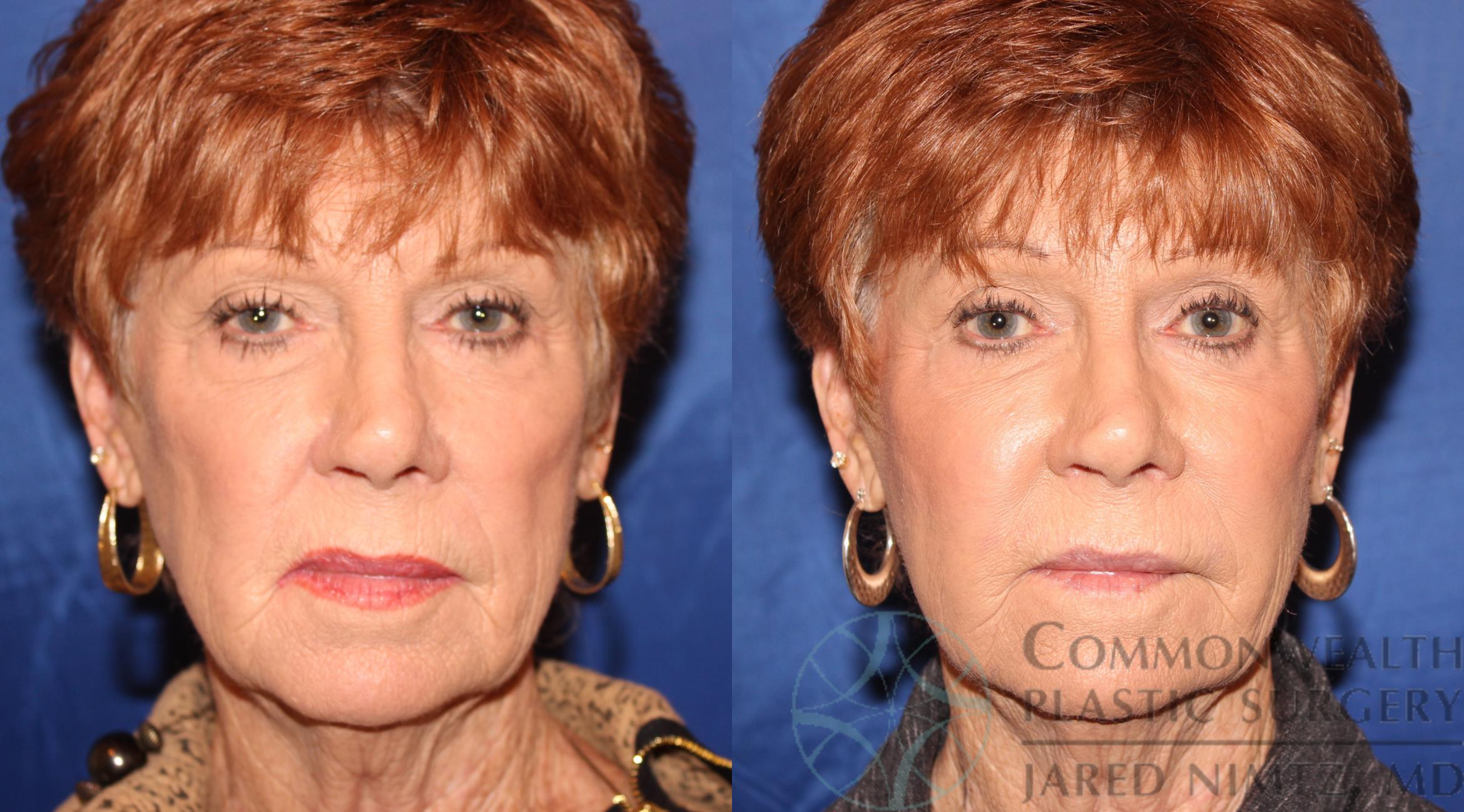 Facial Fat Grafting Case 68 Before & After View #1 | Lexington & London, KY | Commonwealth Plastic Surgery