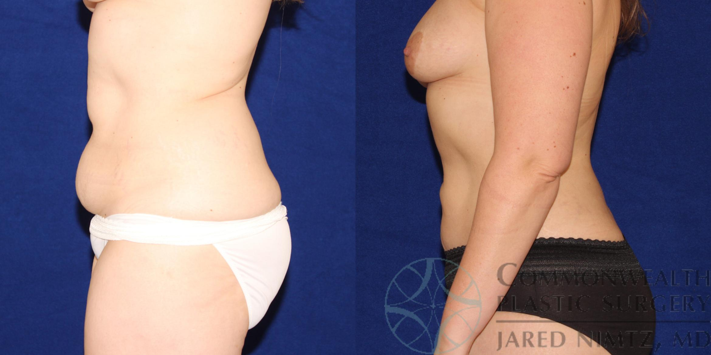 Liposuction Case 88 Before & After View #2 | Lexington & London, KY | Commonwealth Plastic Surgery