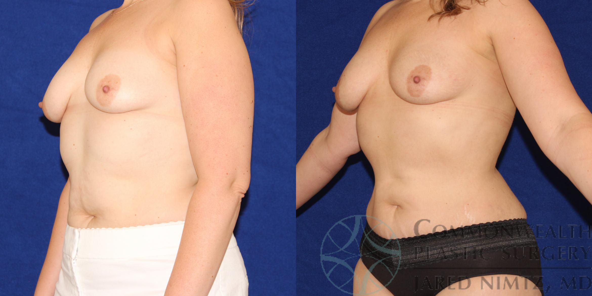 Liposuction Case 88 Before & After View #3 | Lexington & London, KY | Commonwealth Plastic Surgery