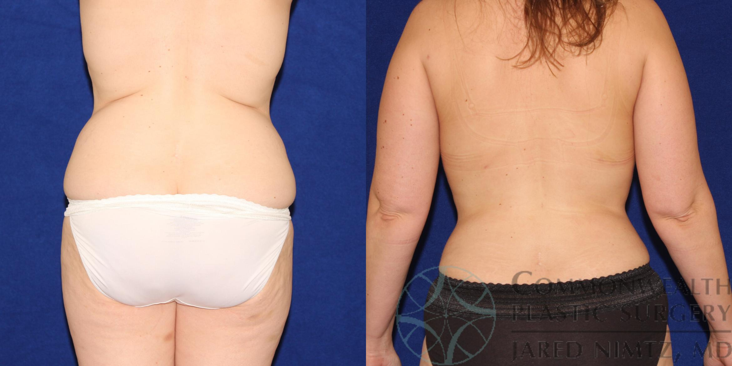 Liposuction Case 88 Before & After View #4 | Lexington & London, KY | Commonwealth Plastic Surgery