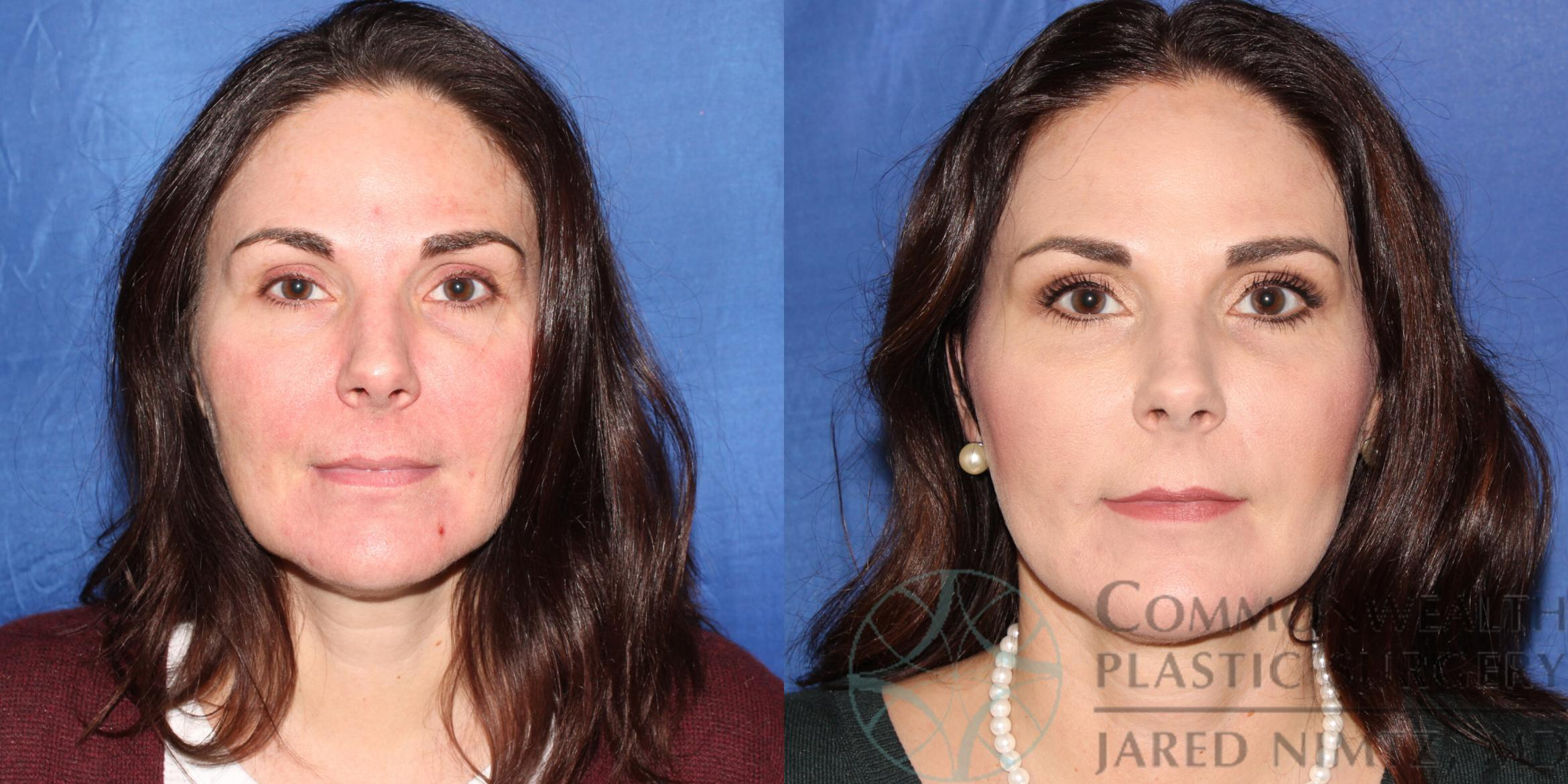 Neck Lift Case 89 Before & After View #1 | Lexington & London, KY | Commonwealth Plastic Surgery