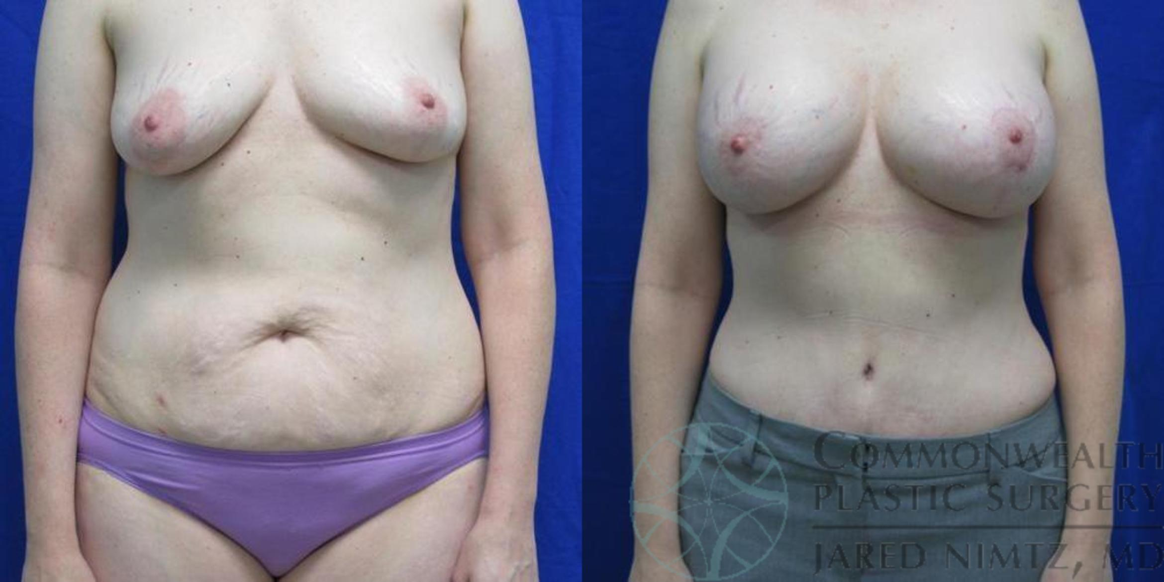 Tummy Tuck Case 38 Before & After View #1 | Lexington & London, KY | Commonwealth Plastic Surgery
