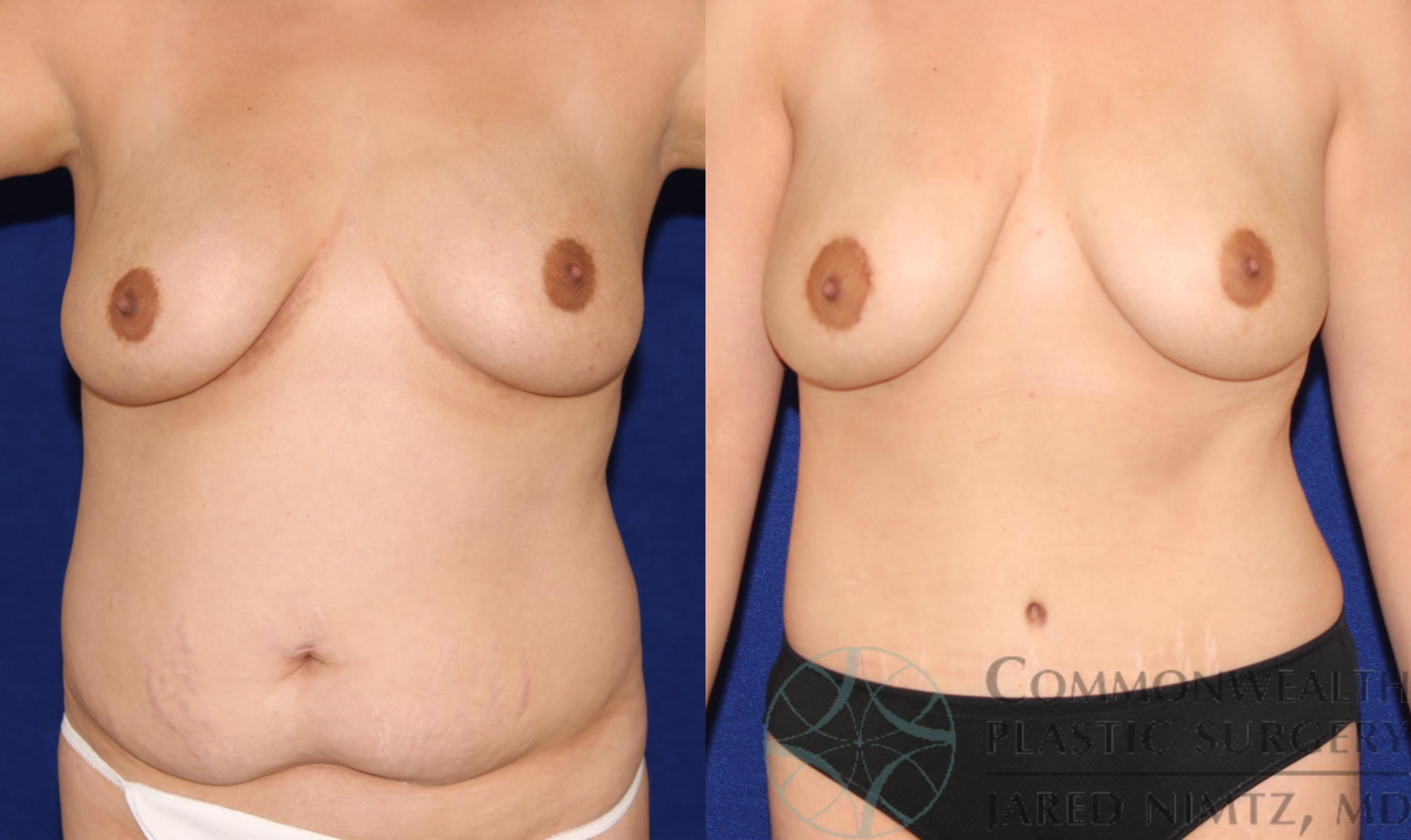 Tummy Tuck Case 67 Before & After View #1 | Lexington & London, KY | Commonwealth Plastic Surgery