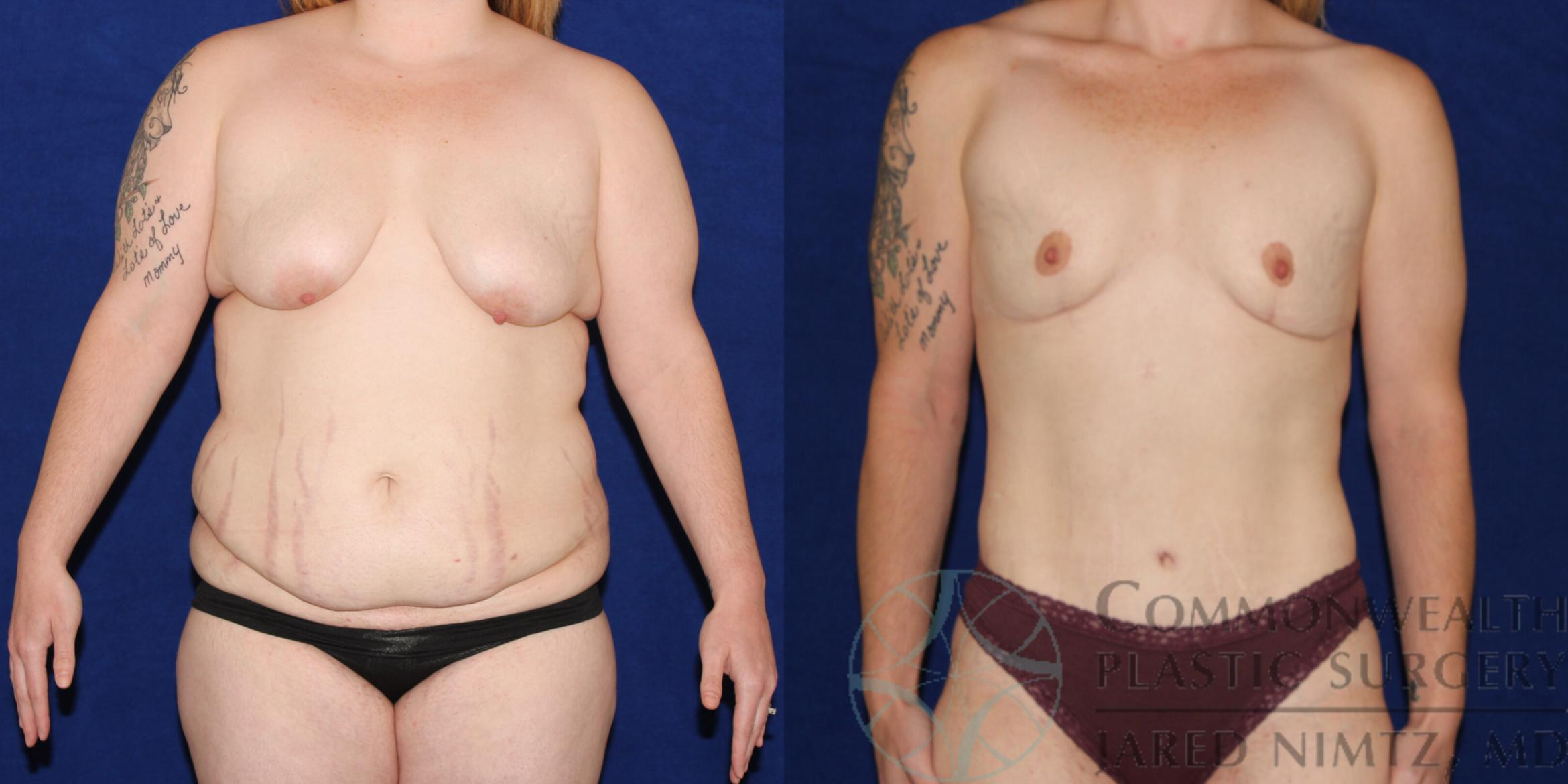 Tummy Tuck Case 83 Before & After View #1 | Lexington & London, KY | Commonwealth Plastic Surgery