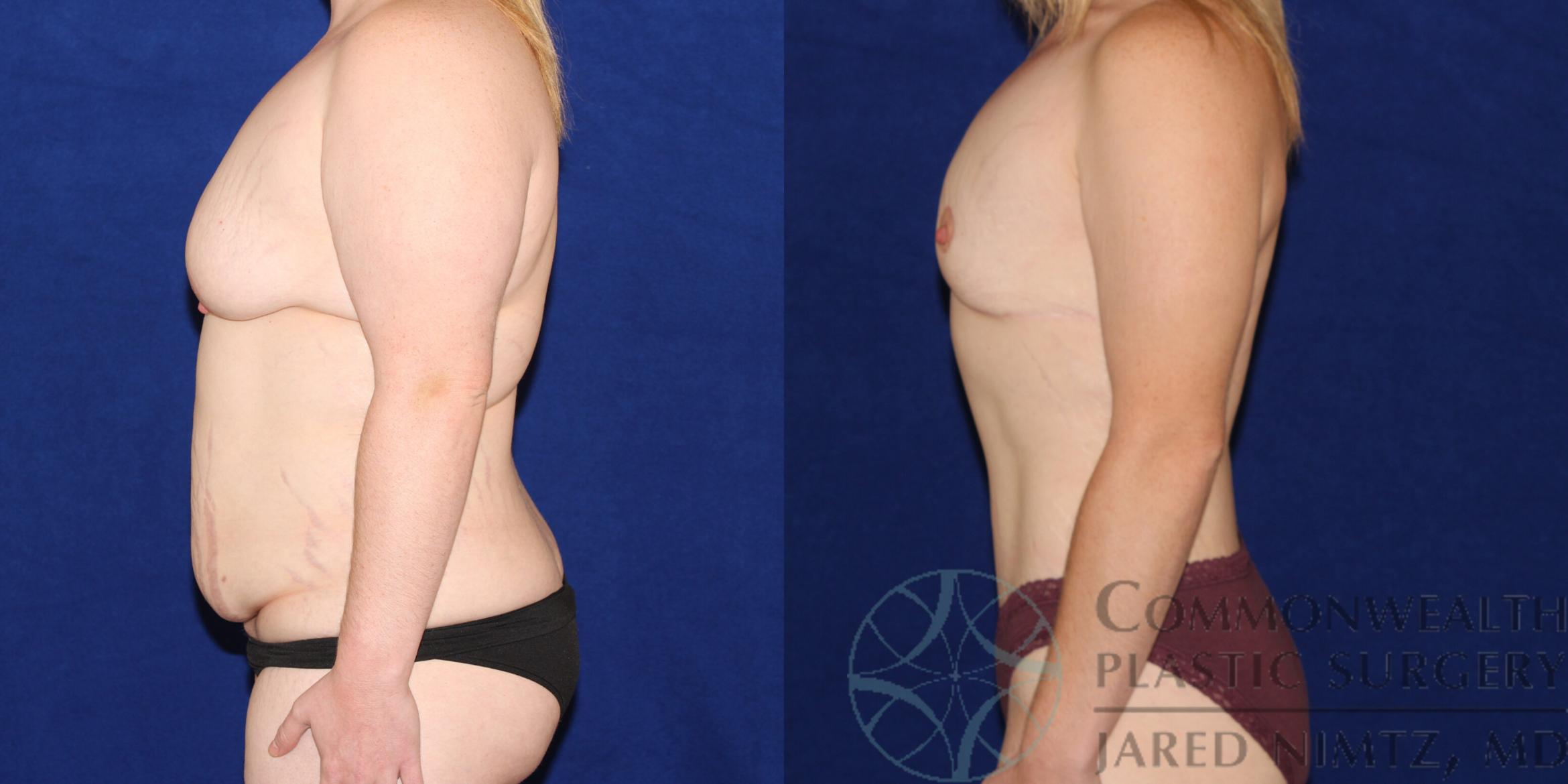 Tummy Tuck Case 83 Before & After View #2 | Lexington & London, KY | Commonwealth Plastic Surgery