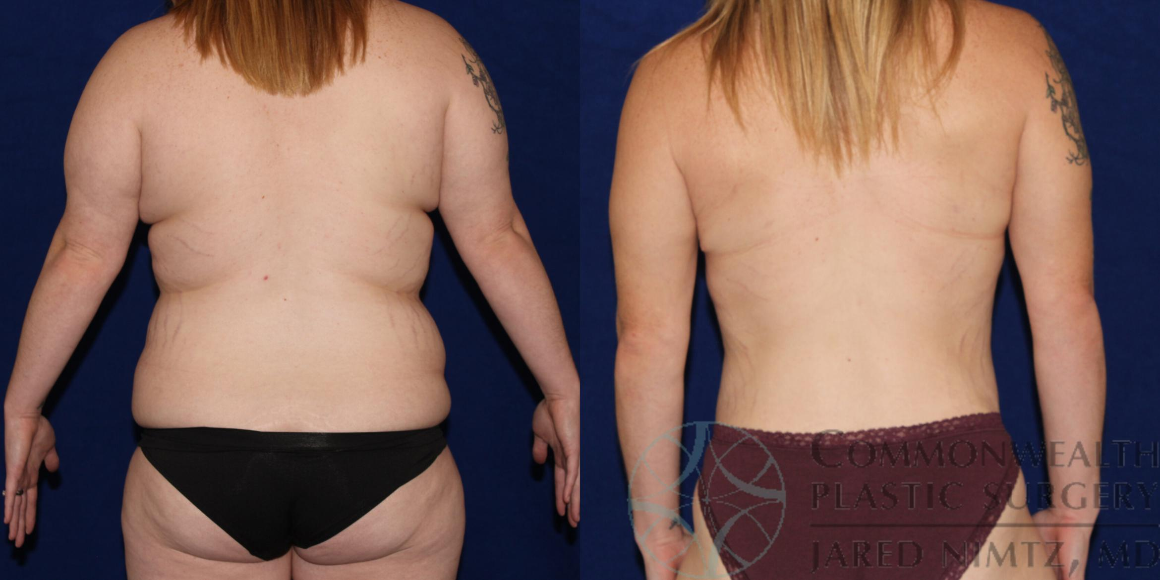 Tummy Tuck Case 83 Before & After View #3 | Lexington & London, KY | Commonwealth Plastic Surgery
